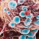 Kajian baru soal kanker payudara
